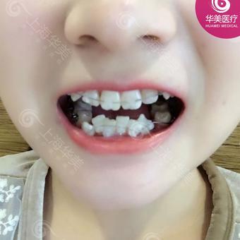 半隐形陶瓷牙齿矫正