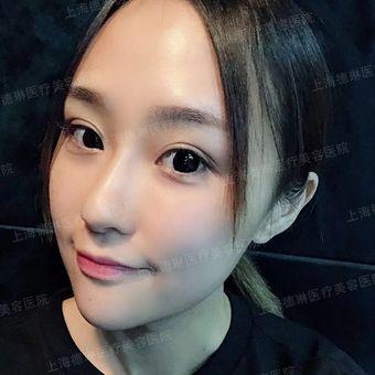 皮肤科医师李媛琪-多效水光