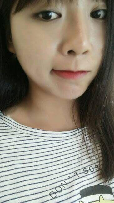 【茉莉亞】假體下巴+假體隆鼻 項目分類:自體脂肪填充 自體脂肪墊下巴