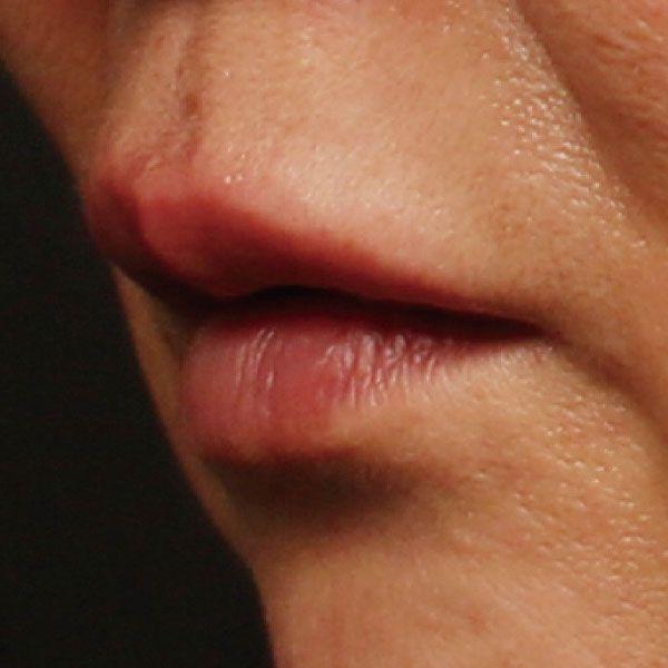 玻尿酸嘟嘟唇 项目分类:玻尿酸 玻尿酸丰唇珠