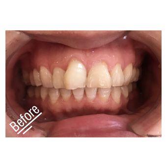 纽菲思牙齿贴面美白拯救齿轮牙