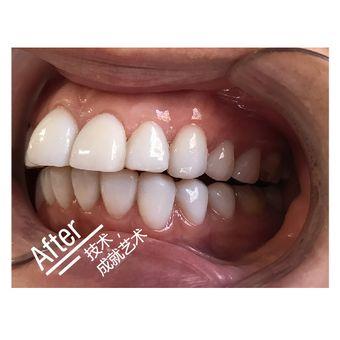 纽菲思牙齿贴面牙齿美白