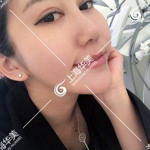 上海华美超声刀