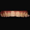 """[术后13天] 经过十多天的恢复适应,回访顾客后,顾客感受方面还是蛮好的,没有什么说后期出现牙齿酸痛的感觉,现在顾客正常吃东西都是没问题的,不过后期还是要持续维护的,这样才能延长我们牙齿的使用寿命。 就目前问题还是想告诉大家,牙齿的健康对于我们来说是非常重要的,因为我们几乎每天都会用到它,所以我们才要更好的去维护它,除了每天早晚刷牙,因为刷牙有些地方是清理不到的,还是需要专业的口腔医生来为您服务操作,给我们的牙齿洗个""""澡"""",定期做检查,做到防患于未然。 用心做好每一位顾客使我们的服务宗旨"""