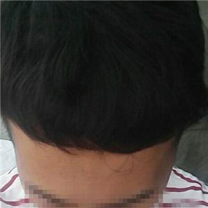 成先生-种植发际线 项目分类:植发养发 植发 种植发际线