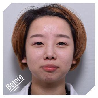 纽菲思鼻部综合美型矫正
