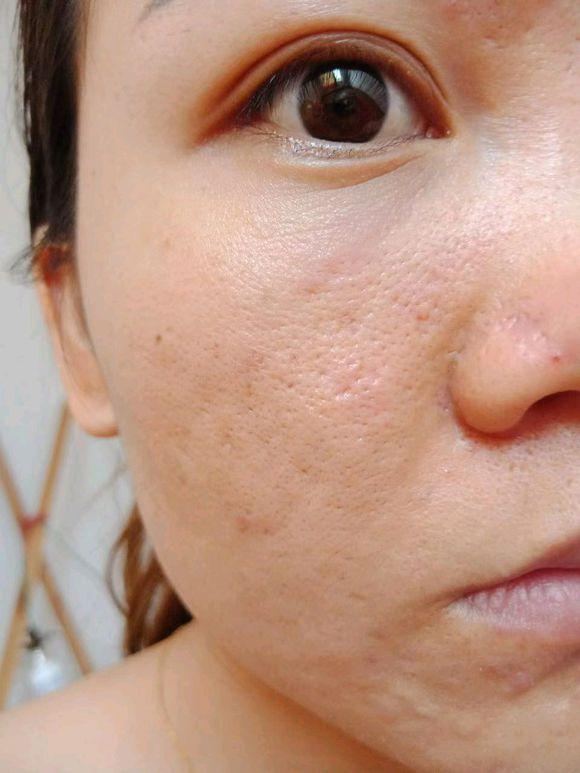 CO2点阵激光祛痘坑、痘疤 项目分类:皮肤管理 点阵激光 去痘印痘坑
