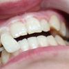 [术后4天] 哇塞,瞧一瞧,看一看,是不是白了很多啊,连我自己都不敢相信自己的牙是如此的白了,就是美白完以后不能吃色素重的东西了,不过有一口亮白的牙真是很好看啊,医生拿着镜子让我看,真是白了,就是默默的变美改变的应该是内在气质吧,毕竟可以放肆随意的大笑呢。