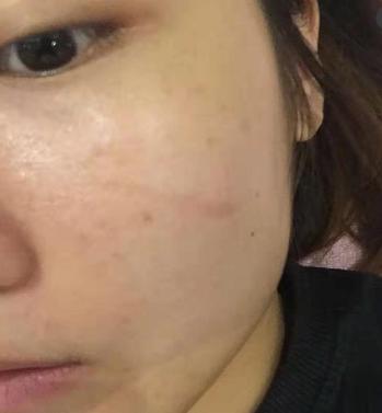 点阵祛疤痕 项目分类:皮肤管理 点阵激光 去痘印痘坑