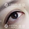 [术后1天] 采用美国进口色乳对眼睑内侧进行上色,术后双眼无形放大,自然流畅