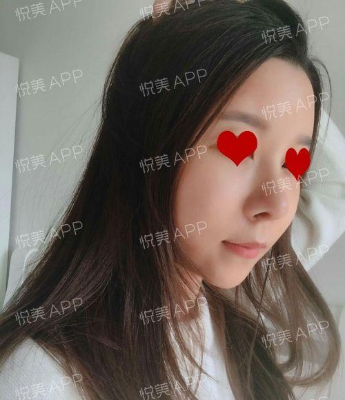 面部自体脂肪填充+隆鼻 项目分类:自体脂肪填充 自体脂肪填充额头