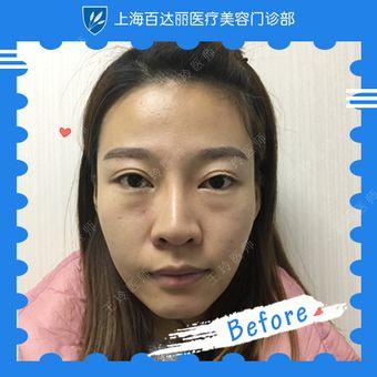 内切祛眼袋+鼻综合整形