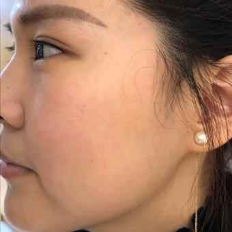 光子嫩肤祛除红血丝