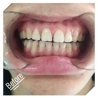 纽菲思陶瓷贴片牙齿矫正