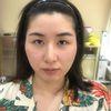 [术后2天] 没手术之前照片,用玻尿酸填充太阳穴