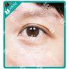 [术后8天] 下了很大决心来做去眼纹,医生推荐我用嗨体去眼纹,刚开始是真的有点痛,不过美丽总是要付出代价的。现在术后一周,眼纹真的消失了非常多,真的和医生说的嗨体立即效果好!我很满意,没了眼纹,人年轻了很多很多。