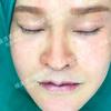 [术后1天] 对嘴型不好看的mm来说是一个理想的微整手术