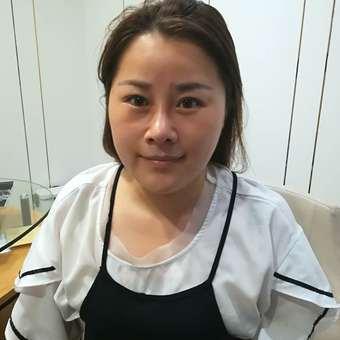 上海美莱自体脂肪填充全脸