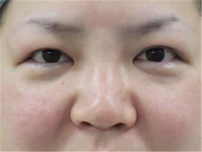 手術完剛做完效果,沒有傷口,不用開刀,下瞼輕微有點輕微腫脹
