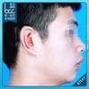 """[术后7天] 有耳甲腔的小耳畸形通常治疗效果比较好,再造的耳朵一般有耳甲腔和耳屏,但如果没有耳甲腔,只有一个腊肠样的残耳,则很难造出很深的耳甲腔和耳屏。再造耳的中心部看上去不会非常逼真。对于有三分之一到二分之一耳朵的患者,我们会采用""""补耳朵""""的办法,在原有耳朵的基础上修补缺损的部位。通常这些患者的治疗效果更好。"""