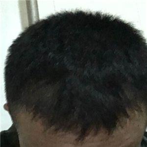 武先生-种植发际线 项目分类:植发养发 植发 种植发际线