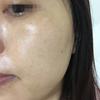 [术后25天] 斑点都淡化了,好了很多,准备先做一个疗程的治疗。