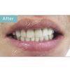 [术后100天] 先做种植牙,再做美容冠,就能恢复一口自然洁白的好牙。