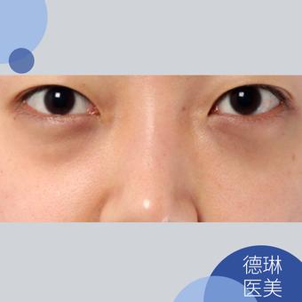 宋鸿植-DM特色眼袋祛除术