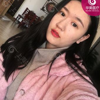 上海华美祛痘套餐