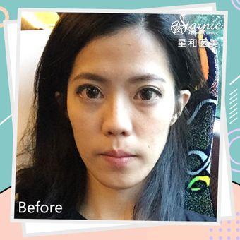 面部轮廓改善